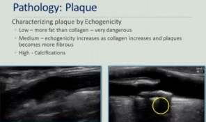 Plaque Characteristics: Why do I care?