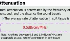 Attenuation: I Finally Get It!